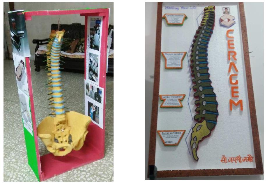 CERAGEM India World Spine Day Bonanza!